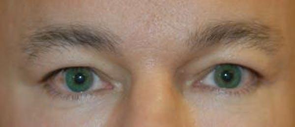 Eyelid Lift (Blepharoplasty) Gallery - Patient 4861524 - Image 3