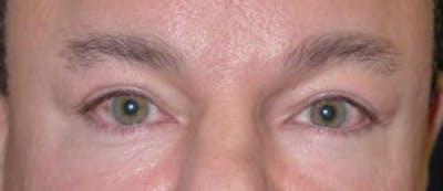 Eyelid Lift (Blepharoplasty) Gallery - Patient 4861524 - Image 4