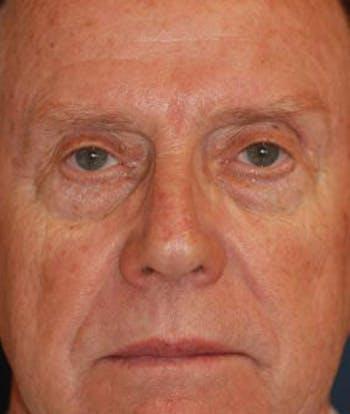 Eyelid Lift (Blepharoplasty) Gallery - Patient 4861526 - Image 1