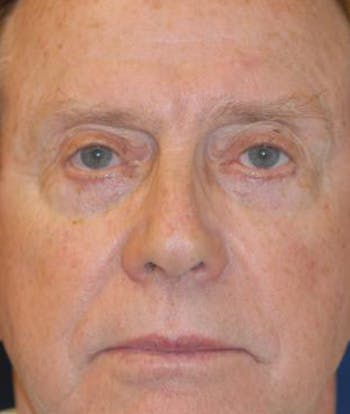 Eyelid Lift (Blepharoplasty) Gallery - Patient 4861526 - Image 2