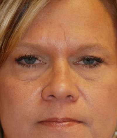 Eyelid Lift (Blepharoplasty) Gallery - Patient 4861527 - Image 11
