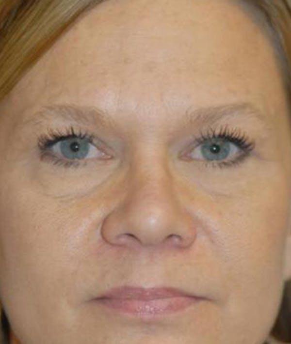 Eyelid Lift (Blepharoplasty) Gallery - Patient 4861527 - Image 2
