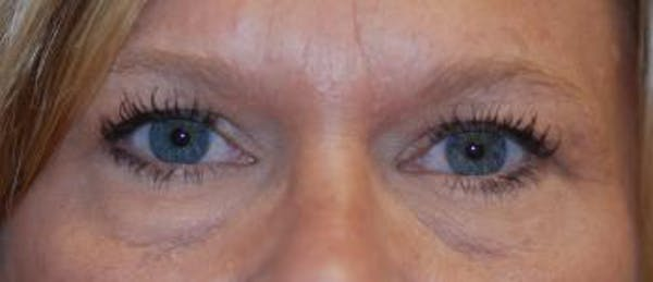 Eyelid Lift (Blepharoplasty) Gallery - Patient 4861527 - Image 3