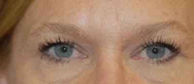 Eyelid Lift (Blepharoplasty) Gallery - Patient 4861527 - Image 4