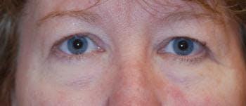 Eyelid Lift (Blepharoplasty) Gallery - Patient 4861528 - Image 1