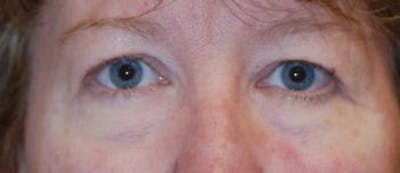 Eyelid Lift (Blepharoplasty) Gallery - Patient 4861528 - Image 12
