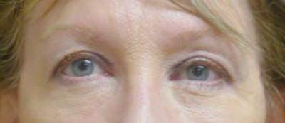 Eyelid Lift (Blepharoplasty) Gallery - Patient 4861528 - Image 2