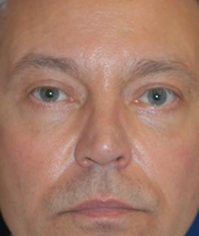 Eyelid Lift (Blepharoplasty) Gallery - Patient 4861531 - Image 2