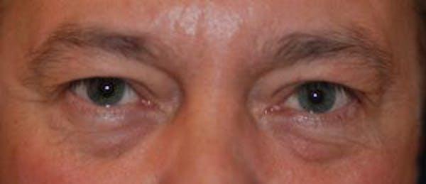 Eyelid Lift (Blepharoplasty) Gallery - Patient 4861531 - Image 3