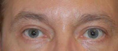 Eyelid Lift (Blepharoplasty) Gallery - Patient 4861531 - Image 4