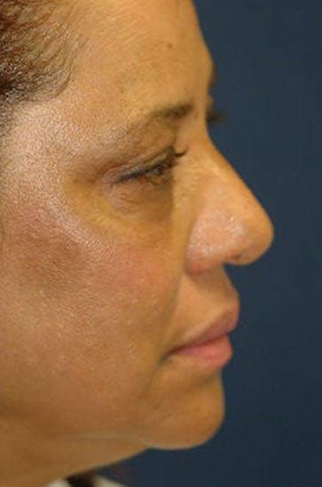 Eyelid Lift (Blepharoplasty) Gallery - Patient 4861532 - Image 1