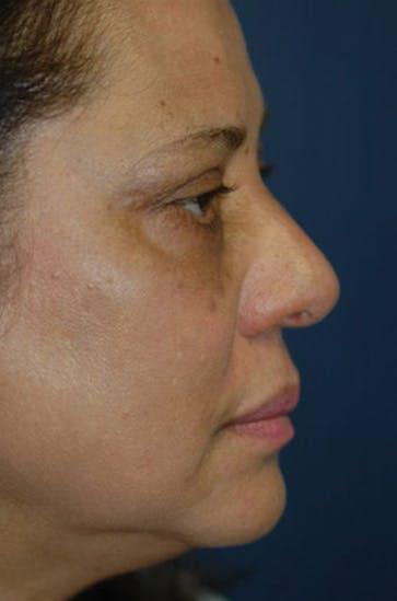 Eyelid Lift (Blepharoplasty) Gallery - Patient 4861532 - Image 2