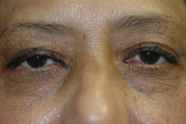 Eyelid Lift (Blepharoplasty) Gallery - Patient 4861532 - Image 3