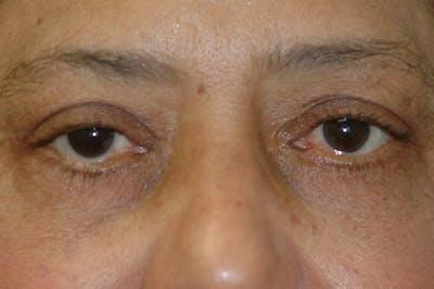 Eyelid Lift (Blepharoplasty) Gallery - Patient 4861532 - Image 4