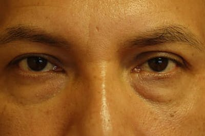 Eyelid Lift (Blepharoplasty) Gallery - Patient 4861533 - Image 16