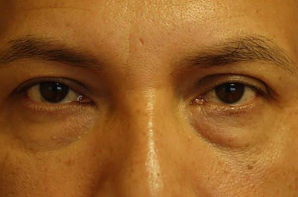 Eyelid Lift (Blepharoplasty) Gallery - Patient 4861533 - Image 1