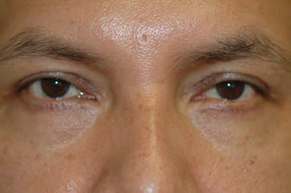 Eyelid Lift (Blepharoplasty) Gallery - Patient 4861533 - Image 2