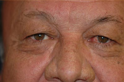 Eyelid Lift (Blepharoplasty) Gallery - Patient 4861535 - Image 1