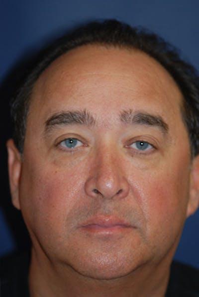 Eyelid Lift (Blepharoplasty) Gallery - Patient 4861536 - Image 19