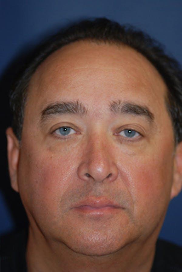 Eyelid Lift (Blepharoplasty) Gallery - Patient 4861536 - Image 1