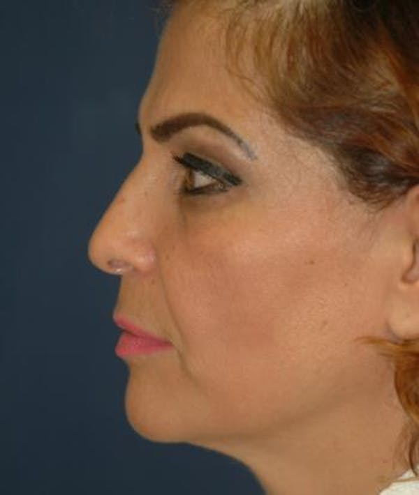 Facelift Gallery - Patient 4861537 - Image 1