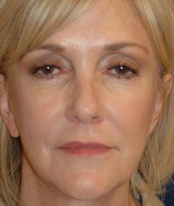 Facelift Gallery - Patient 4861538 - Image 1
