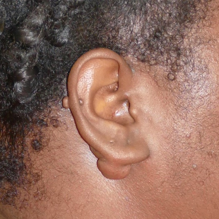 Scars/Malformations Gallery - Patient 4861539 - Image 1
