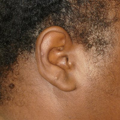 Scars/Malformations Gallery - Patient 4861539 - Image 2