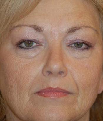 Facelift Gallery - Patient 4861540 - Image 1