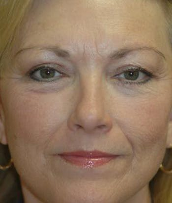 Facelift Gallery - Patient 4861540 - Image 2