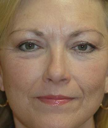Facelift Gallery - Patient 4861540 - Image 2