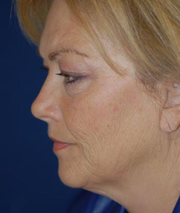 Facelift Gallery - Patient 4861540 - Image 3