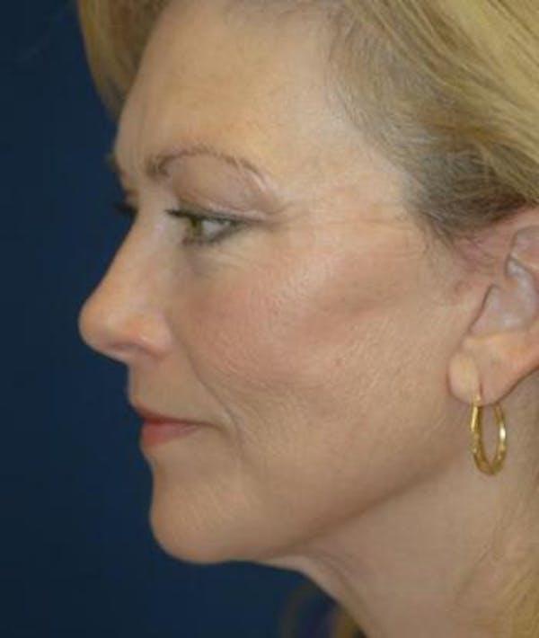 Facelift Gallery - Patient 4861540 - Image 4