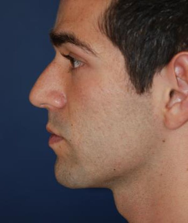 Houston Rhinoplasty Before and After