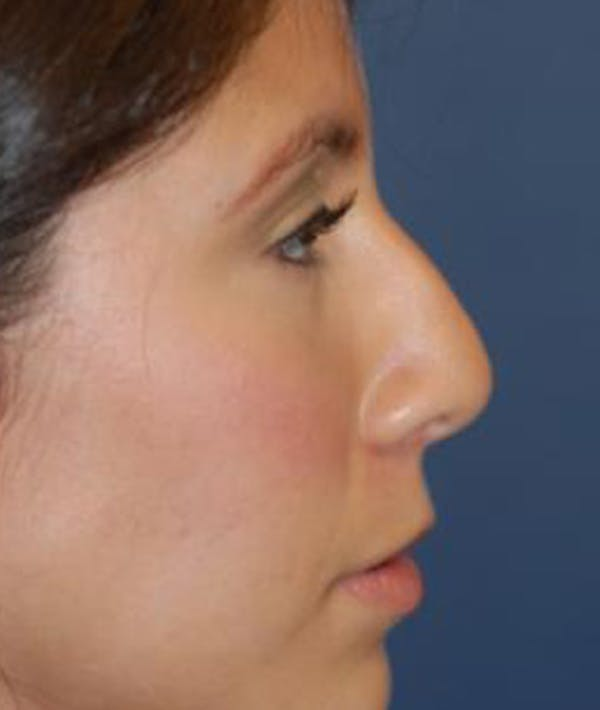 Rhinoplasty Gallery - Patient 4861544 - Image 3
