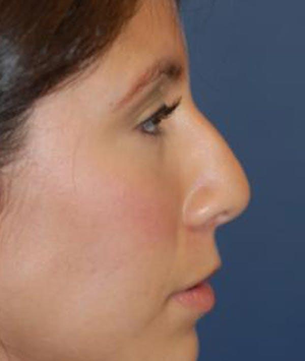 Rhinoplasty Gallery - Patient 4861544 - Image 3