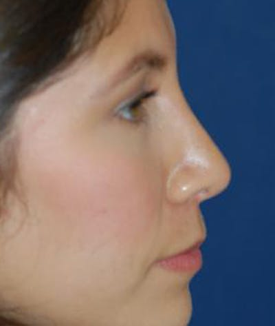 Rhinoplasty Gallery - Patient 4861544 - Image 4