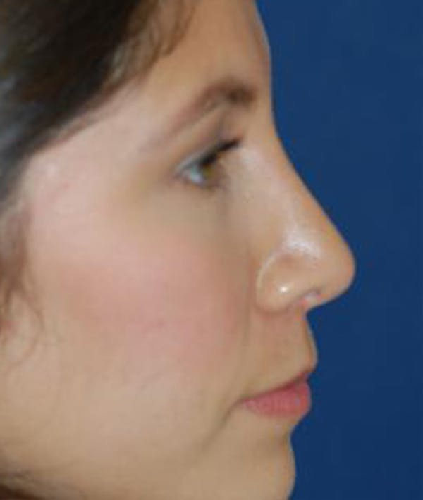 Rhinoplasty Gallery - Patient 4861544 - Image 4