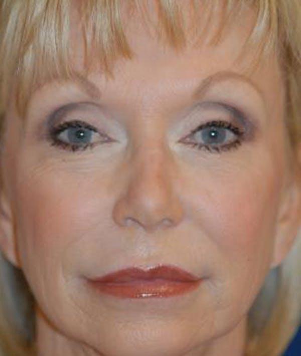 Facelift Gallery - Patient 4861547 - Image 1