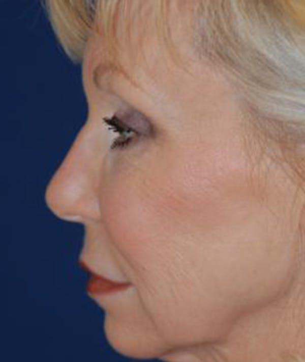 Facelift Gallery - Patient 4861547 - Image 3