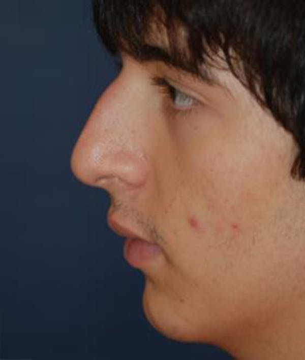 Rhinoplasty Gallery - Patient 4861546 - Image 3