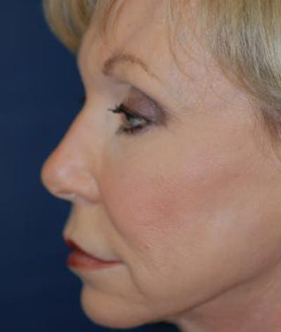 Facelift Gallery - Patient 4861547 - Image 4