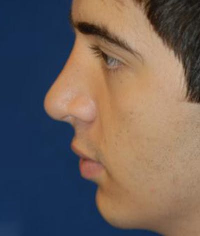 Rhinoplasty Gallery - Patient 4861546 - Image 4