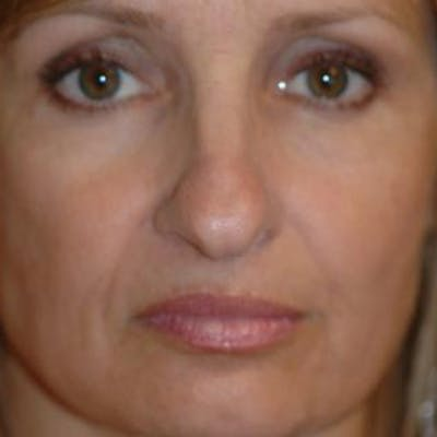 Rhinoplasty Gallery - Patient 4861550 - Image 1