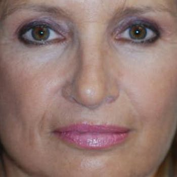 Rhinoplasty Gallery - Patient 4861550 - Image 2