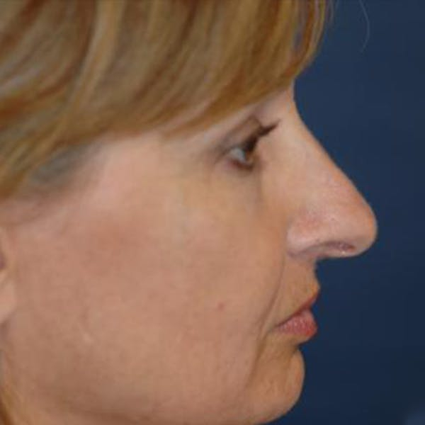 Rhinoplasty Gallery - Patient 4861550 - Image 3