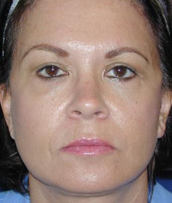 Facelift Gallery - Patient 4861551 - Image 2