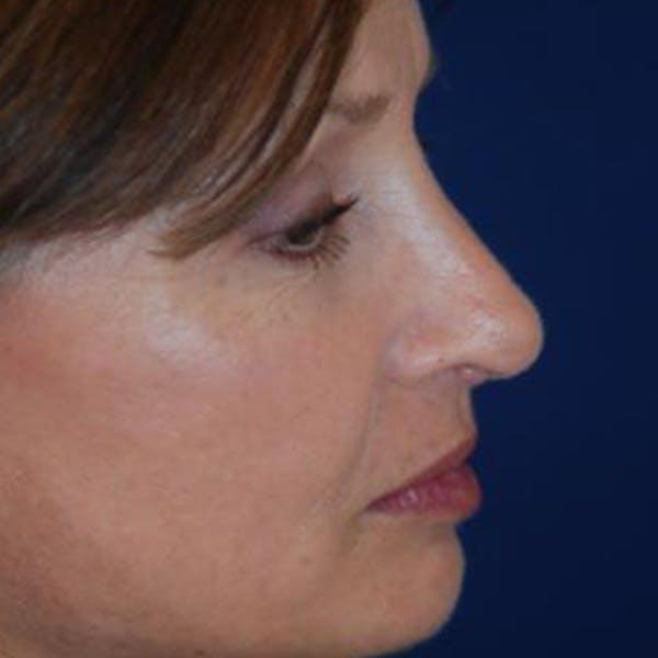 Rhinoplasty Gallery - Patient 4861550 - Image 4