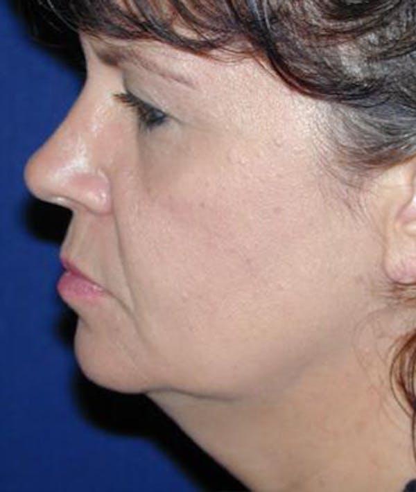 Facelift Gallery - Patient 4861551 - Image 3