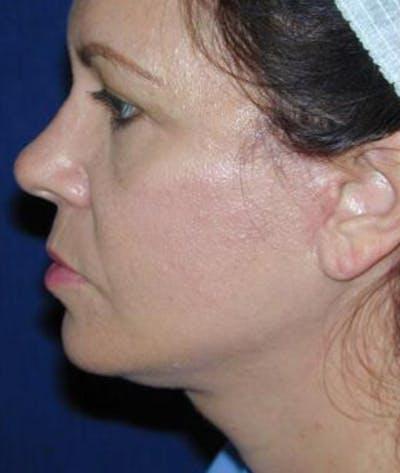 Facelift Gallery - Patient 4861551 - Image 4